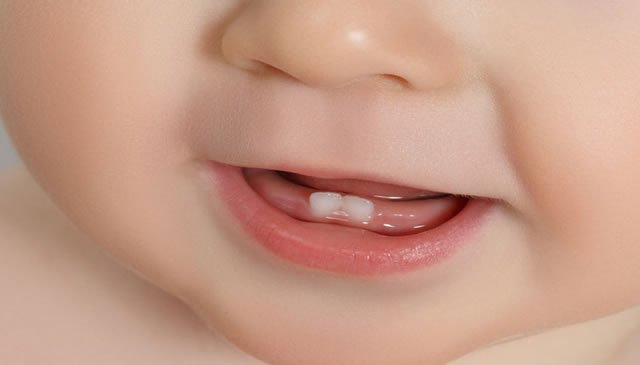 Os primeiros dentes do bebé, quando nascem e que sintomas causam!