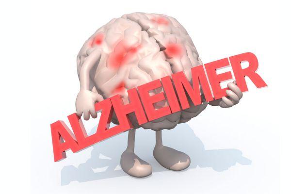 Como o exercício físico pode ajudar a prevenir a doença de Alzheimer