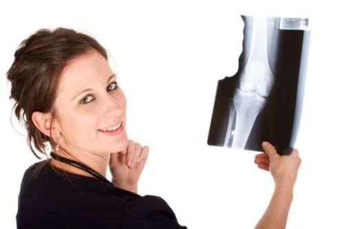 Osteoporose na mulher: Proteja os seus ossos!