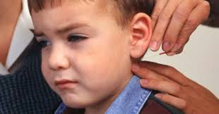 acupuntura infantil