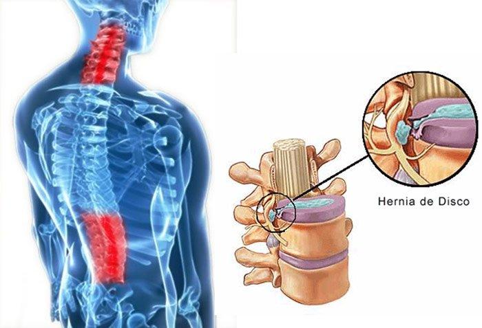 Hérnia Discal – Sintomas e Tratamento