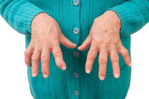 tratamentos para a artrite reumatoide