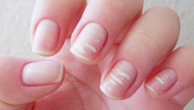 Porque aparecem manchas brancas nas unhas?
