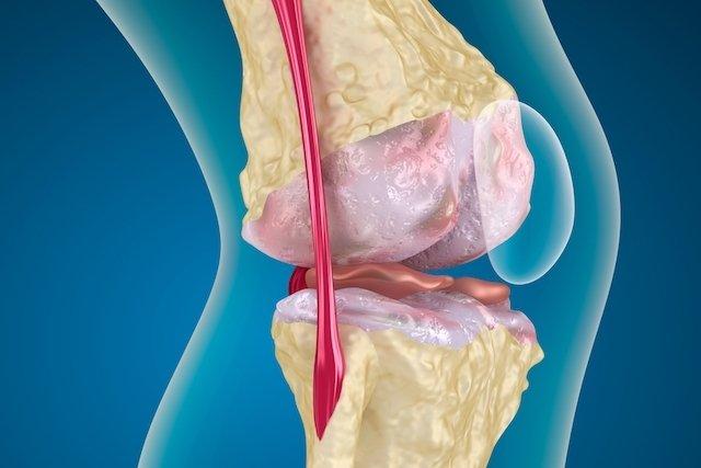 Artrose como tratar