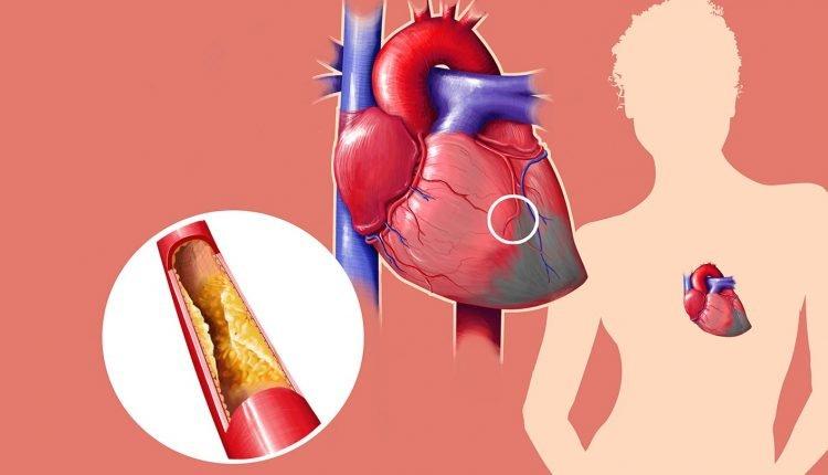 Colesterol causa enfarte, AVC e outras doenças, mas pode ser evitado.