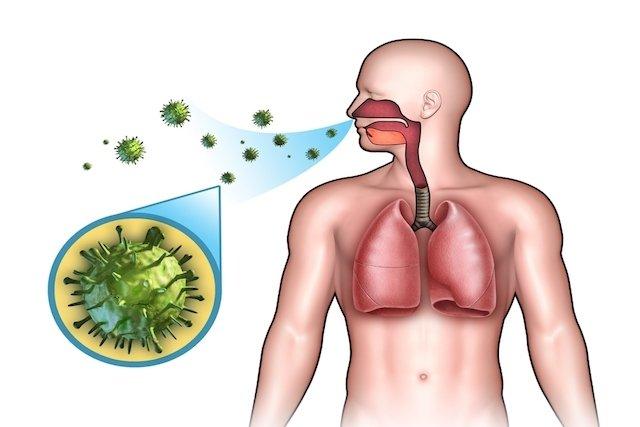 Meningite sintomas, causas e tratamento