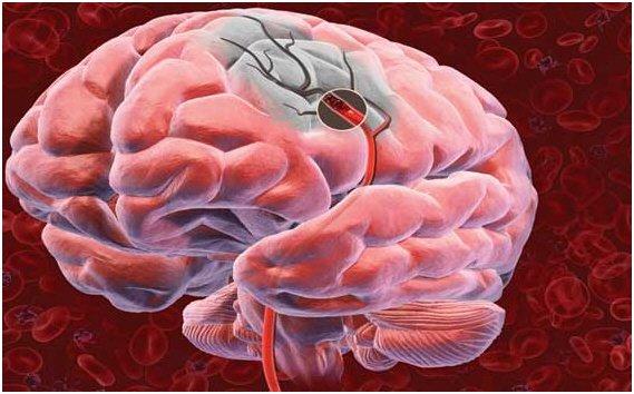 AVC, saber prevenir e saber agir – Sintomas de AVC – Acidente Vascular cerebral