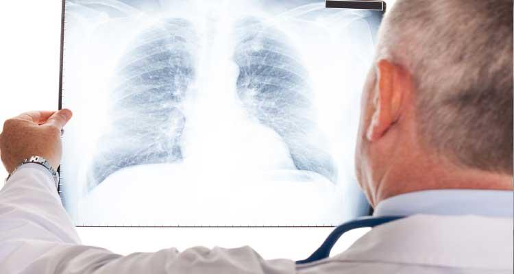Sintomas de pneumonia, causas, curas, tratamento e prevenção!