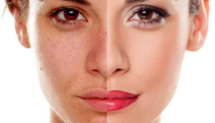 Envelhecimento precoce – Saiba como prevenir