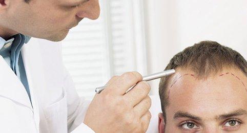 como prevenir a queda de cabelo