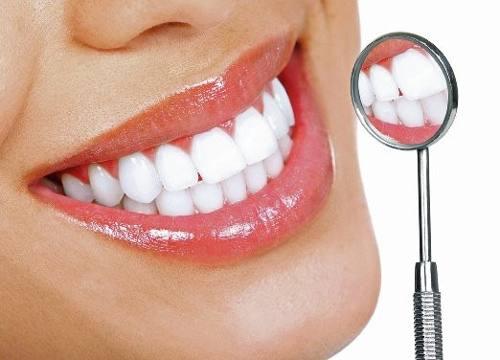 Branqueamento dentário, em busca de um sorriso perfeito