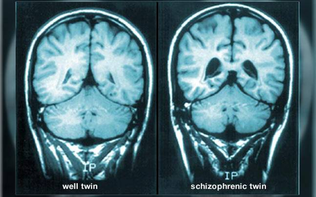 o que é a esquizofrenia