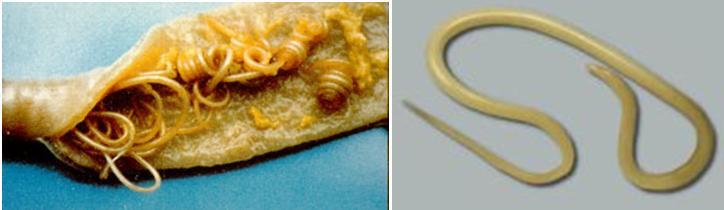 Infeções parasitárias nos bebés e crianças
