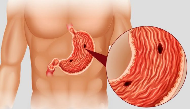 Úlceras: dor no estômago que incomoda