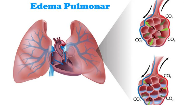 Edema pulmonar, quais as causas?