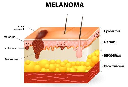 o que é um melanoma