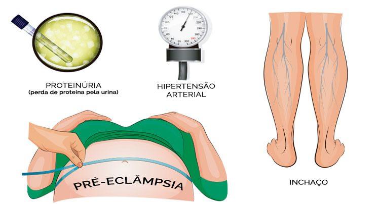 Pré-eclampsia