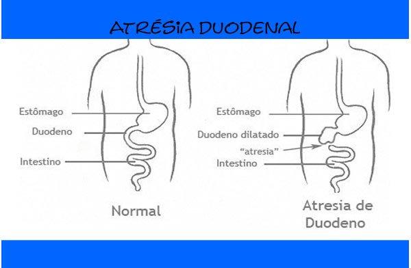 Atrésia duodenal