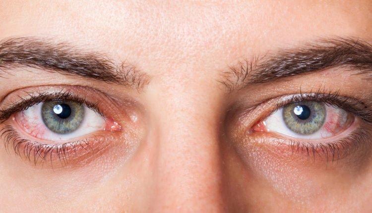 Os seus olhos estão em forma?